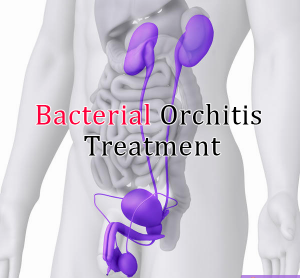 orchitis treatment in lahore tenderness in the scrotum painful urination painful ejaculation a swollen scrotum blood in the semen abnormal discharge an enlarged prostate swollen lymph nodes in the groin a fever chronic inflammation of the epididymis an abscess or blister within the scrotum shrinking of the affected testicle the death of testicular tissue testicullar pain