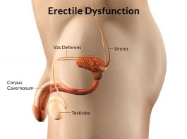 Erectile Dysfunction Treatment in Lahore - Impotence Treatment In Lahore By Our Chinese Andrologist In Lahore, Premature ejaculation, No erection