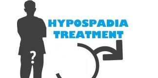 Hypospadias Treatment hypospadias surgery hypospadias hypospadias causes hypospadias in men hypospadias in male hypospadias and epispadias hypospadias treatment in lahore hypospadias ventral hypospadias surgery hypospadias treatment adults hypospadias treatment after surgery hypospadias surgery in lahore hypospadias repair techniques hypospadias prevention nursing management of hypospadias hypospadias surgery doctor hypospadias symptoms hypospadias causes hypospadias ka ilaj Penis Malformation Treatment