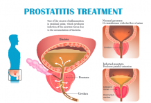 Prostatitis Treatment Prostatitis Treatment In Lahore Prostate Treatment Chronic Bacterial Prostatitis Acute Prostatitis Treatment Urologist In Lahore