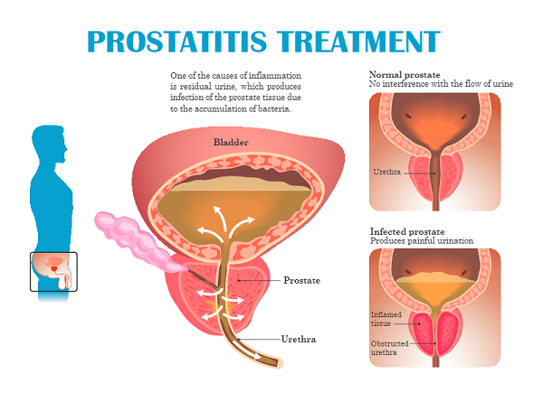 prostatitis causes back pain.jpg