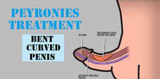 Peyronies Disease peyronies disease treatment peyronies disease treatment in Lahore peyronies disease Ka Ilaj symptoms peyronies disease causess peyronies disease doctor peyronies treatment Peyronies Disease hospital Urologist for Peyronies Disease Doctor for Peyronies Disease