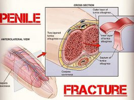 Penile Fracture treatment in Lahore penis fracture how to treat penile fracture penile fracture causes penile fracture recovery time penile fracture treatment without surgery mild penile fracture symptoms can a penile fracture heal itself penile injury how to cure penile fracture