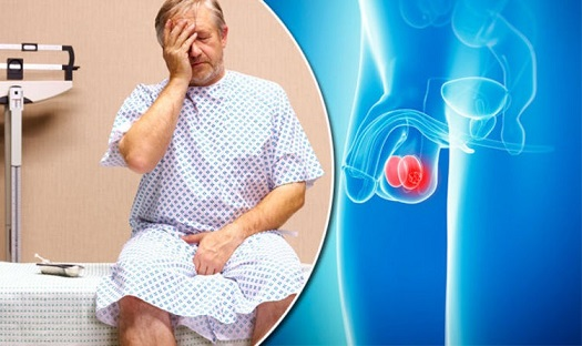 Testicular Lump treatment in Lahore Testicular Lump Causes Testicular Lump Symptoms Testicular Lump Ka Ilaj Testis Lump Testicle Lump Testicular Lump Cure How To Treat Testicular Lump Testicular Lump In Males