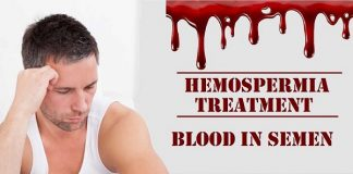 Hemospermia Treatment In Lahore Blood In Semen Treatment how to treat hemospermia hematospermia cure hematospermia causes hematospermia remedies hemospermia causas urologist for hemospermia hematospermia surgery hematospermia medication muni mein khoon khoon any ka ilaj sperm k sath blood ana khoon k katry