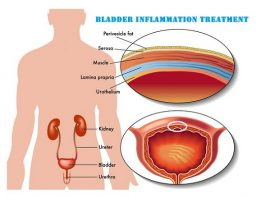 Natural Treatment For Neurogenic Bladder
