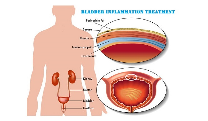bladder inflammation treatment in Lahore how to relieve bladder inflammation inflamed bladder home remedies inflammation of the bladder bladder inflammation cure bladder inflammation symptom bladder inflammation treatment natural bladder lining damage bladder inflammation after uti interstitial cystitis treatment how to treat interstitial cystitis how to treat bladder inflammation masana ka ilaj bladder ka ilaj