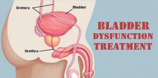 Bladder Dysfunction Treatment in lahore neurogenic bladder treatment how to treat bladder dysfunction neurogenic bladder diagnosis neurogenic bladder pathophysiology how to cure bladder dysfunction neurogenic bladder causes neurogenic bladder symptoms neurogenic bladder urologist masana ka ilaj
