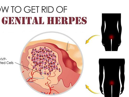 Genital herpes Treatment genital herpes in Lahore how to treat genital herpes genital herpes in males genital herpes in females urologist for genital herpes best doctor for genital herpes genital herpes causes genital herpes symptoms genital herpes medicine genital herpes cure genital herpes home remedies genital herpes ka ilaj penis py dany penis py infection vagina py dany