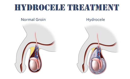 Hydrocele Treatment in Lahore Hydrocele causes Hydrocele symptoms hydrocele pain hydrocele surgery hydrocele hernia hydrocele in infants hydrocele treatment without surgery hydrocele in babies how to treat hydrocele hydrocele cure Hydrocele Ka ilaj sweeling in testicles fluid in testicles testis treatment