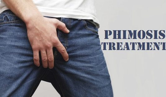 phimosis treatment in lahore tight foreskin of penis phimosis causes phimosis symptoms how to treat phimosis how to cure phimosis phimosis in adults phimosis in kids doctor for phimosis ka ilaj