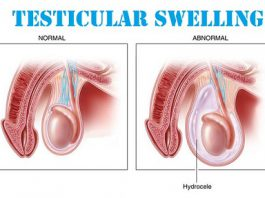 Testicular Swelling Treatment Enlarged Scrotal Sac Testicular Inflammation Testicular Swelling Causes Testicular Swelling Symptoms How To Treat Testicular Swelling Cure For Testicular Swelling Doctor For Testicular Swelling Medicines For Testicular Swelling Testis Swelling Treatment Testicles Swelling Treatment