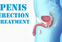 Erection Treatment in men Erection Treatment in lahore Erection disorder No Erection Penis Erection Hard Erection Causes of no Erection impotence treatment